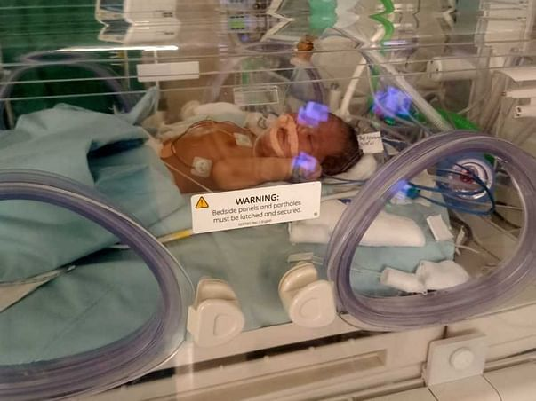 Support  This 9 Days Baby To Fight With Meconium Aspiration Syndrome