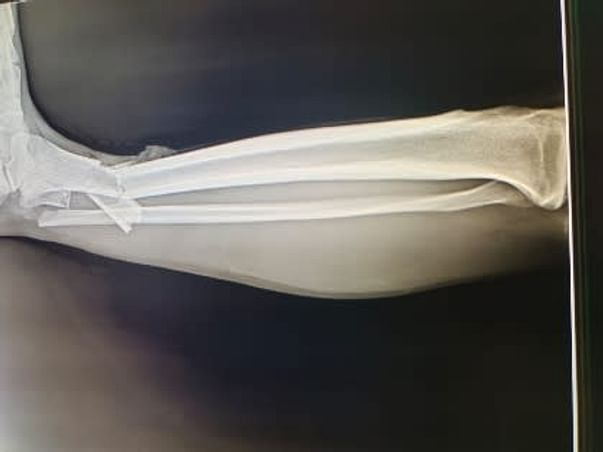 24 Years Old Need Your Urgent Support In Fighting Multiple Fractures
