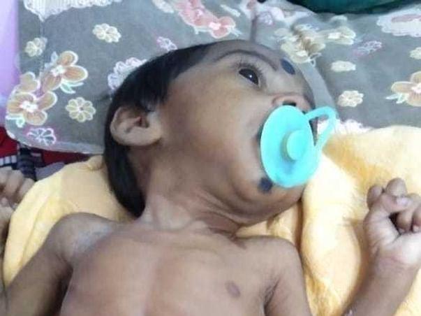 Help Baby Jeevith To Undergo Liver Transplantation