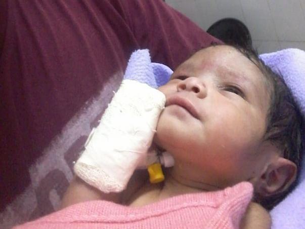 Fundraiser For Saraswati's Baby's Multiple Surgeries-Help Him Survive