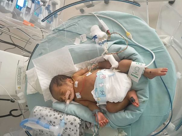 SUPPORT DURGA RAO TO SAVE HIS PREMATURE BABY