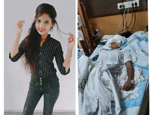 Help My Sister Recover From Brain and Face Injury Due To Accident