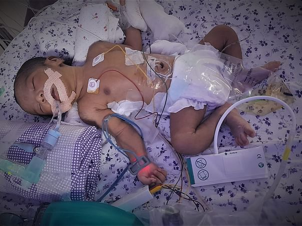 Help a 03-day-old Newborn Girl Get a Life - She is a FIGHTER!
