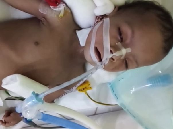My Son Is Struggling With Dilated Cardiomyopathy, Help Him