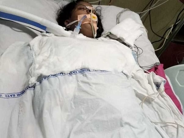 Help My Wife To Recover From Idiopathic Dilated Cardiomyopathy.