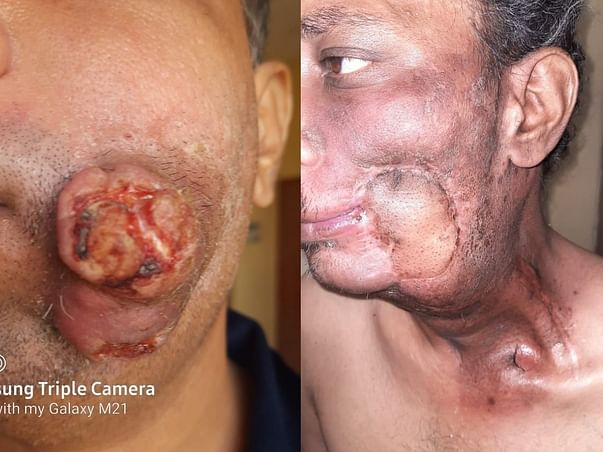 Help My Brother To Recover From Oral Cancer