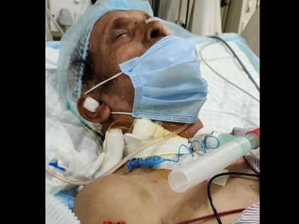 Help My Uncle Recover From Multiple Organ Dysfunction Syndrome (MODS)