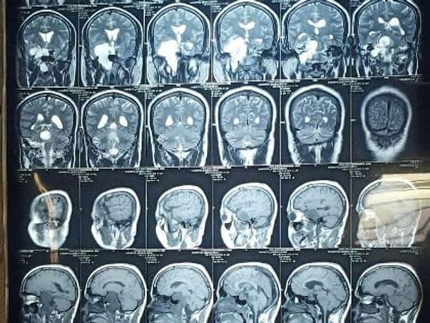 Help Govinda Raj Recover From Brain Tumor