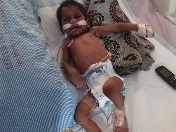 Help 11-months-old Dhanush To Undergo Heart Surgery.