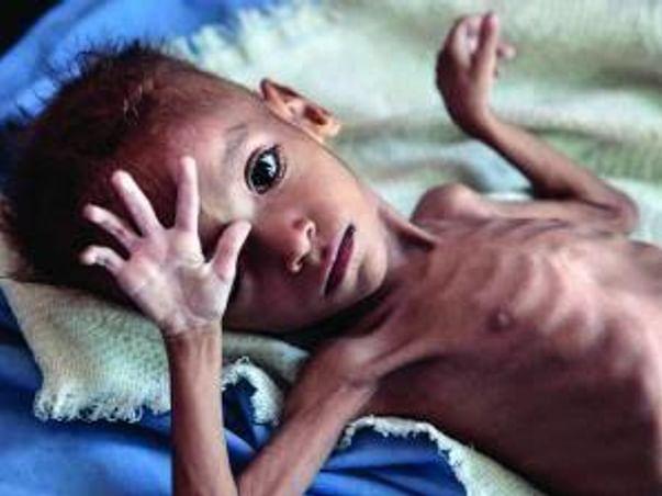 Nutrition for 300 Malnourished children