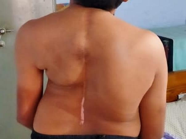 Help Sampath Kumar Reddy For Spine Surgery Suffering From Childhood