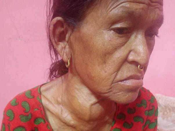 Nandadevi Koli is struggling with Thyroid Carcinoma, help her