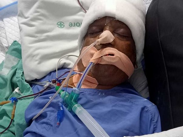 Om Prakash Needs Help To Recover From Post-brain Surgery Complications