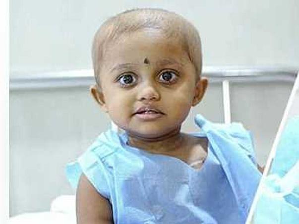 2 Years Old Sai Shree Needs Your Help Fight High-Grade Sarcoma