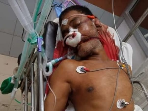 Support My Father Ramesh Rout Recover from Accident