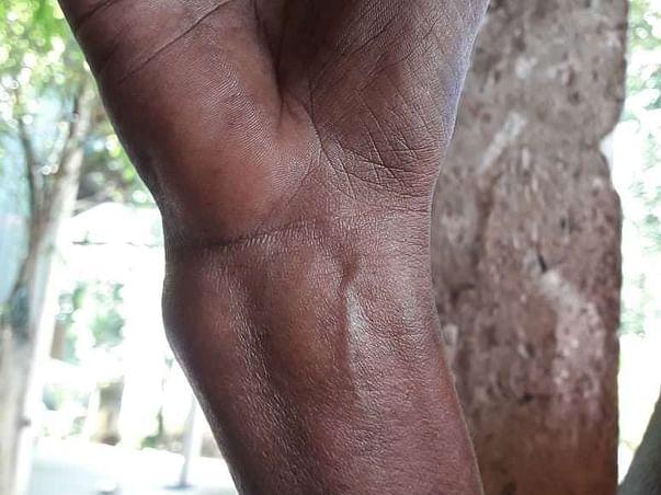 Help Maheran Undergo Wrist Surgery
