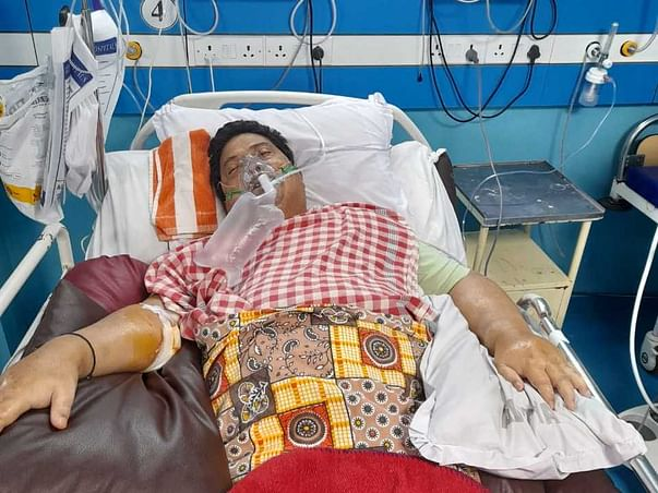 64 years old Sivadas Talukdar (Kidney Transplant patient) needs your help fight Post Covid Complications , currently on Ventilation support.