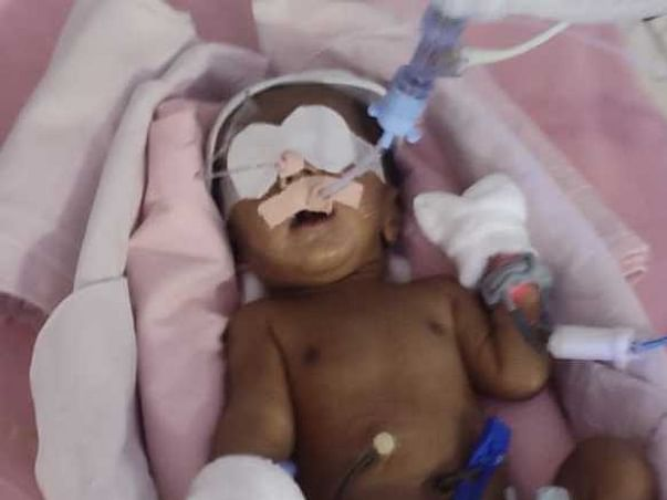 Support Baby Of Varsha To Recover From Tracheoesophagal Fistula