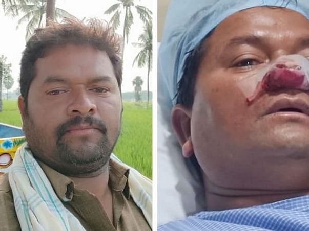Support My Friend Mainam Saidulu To Recover From Black Fungus
