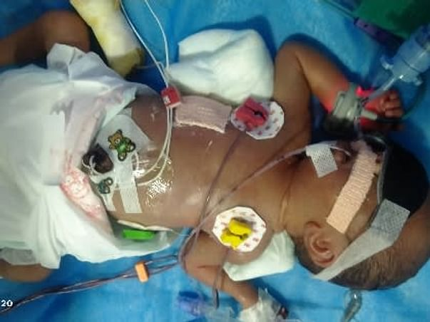 Support My Baby To Recover From Premature Birth