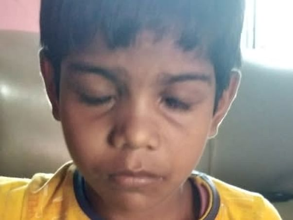 Support Suman Sk Recover From Chicken Pox And Limbal Stem Cell