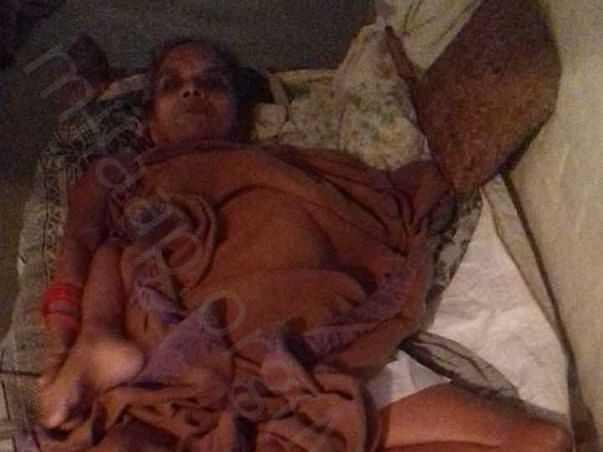 Support Rukhmani Pandey To Recover From Paralysis