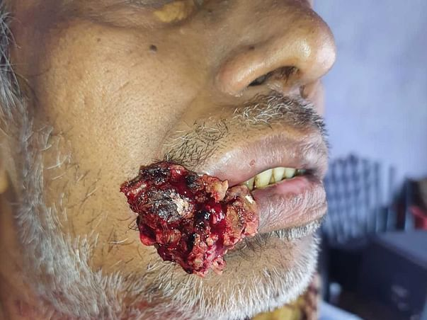 Support My Father Govardhan Ram To Recover From Mouth Cancer