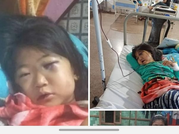 Help a girl child to fight Bone Marrow transplant