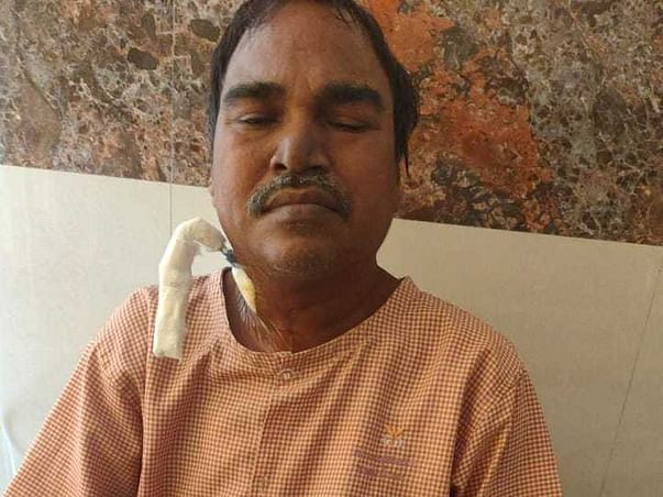 Please Support My Father To Recover From Kidney Failure