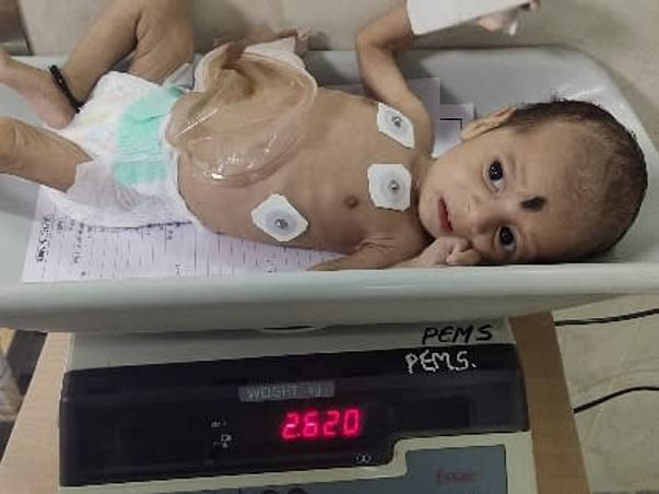 Support Baby Of Sandhya Recover From Intestine Problems