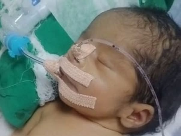 Support Baby Of MahaLakshmi To Recover From Multiple Diseases