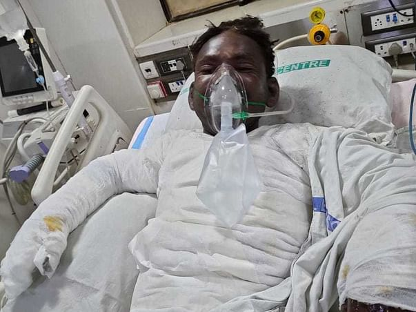 Support Shivmochan Recover From Accidental Burns