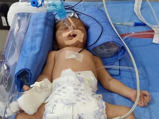 3 Days Old Baby Of Sonal Needs Your Help Recover From Birth Complications
