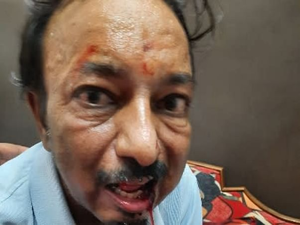 Support Rajendra Bansiwala Recover From Oral Cancer