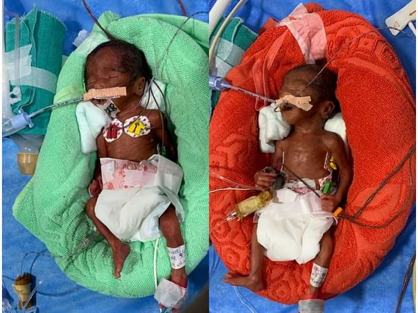 Help Twins Recover From Prematurity / Preterm