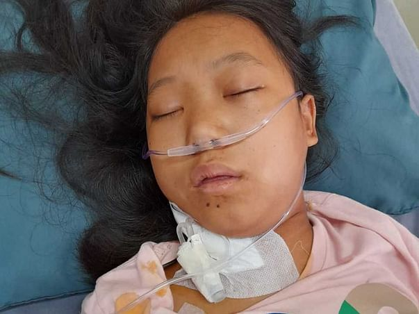 Help My Daughter, Yamra Yanu Recover From Both Kidney Failure