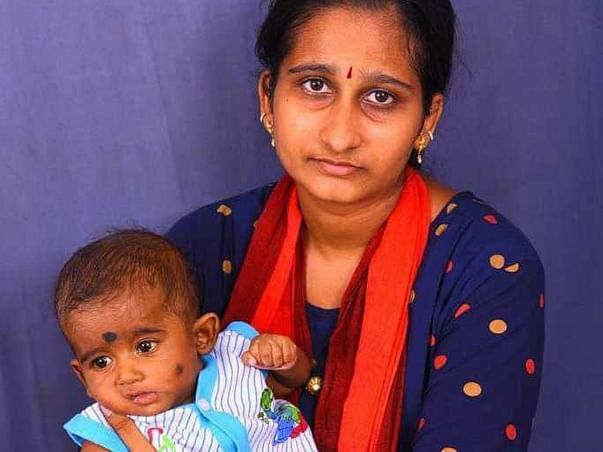 Support Baby Nihaan Sai For Liver Transplantation Suffering with EHBA