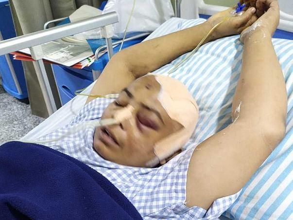 Help My Mother, Koutam Urmila 50Yrs/O Recover From Brain Tumor