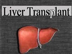 I am fundraising to husband's Liver Transplant