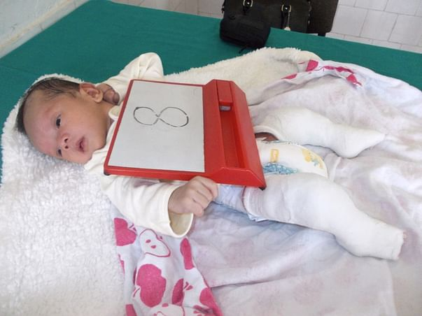 I am fundraising to help treat clubfoot in babies