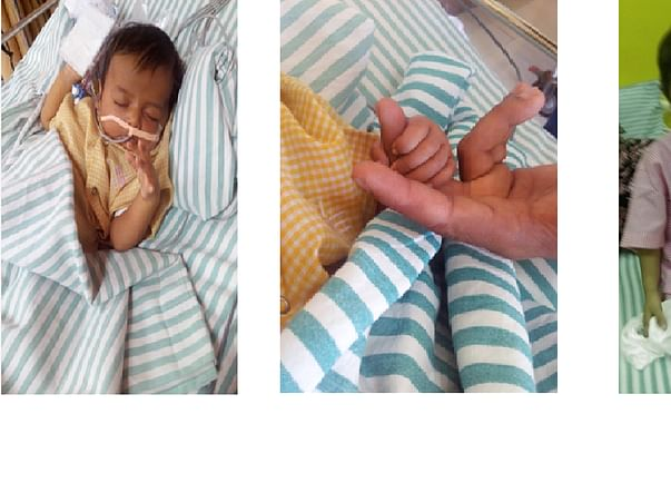 Help save 3 year old baby Kabir