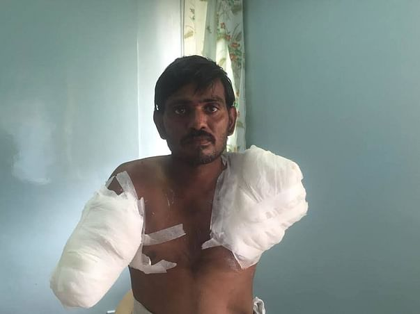 Help Rama - An Electric Line Man Who Lost Both Hands While On Duty!