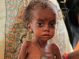 You can save the lives of 40 malnourished children