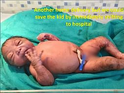 Save A Child from malnourishment