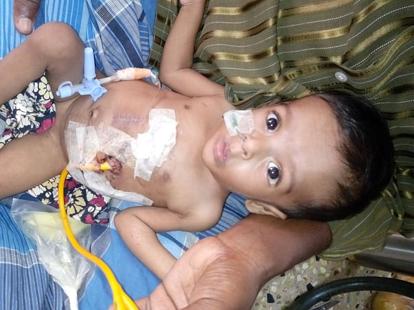This Baby requires a surgery so that he can eat through his mouth