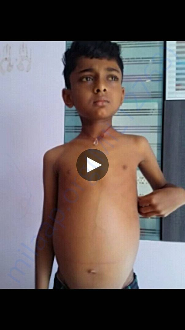 Mithilesh before surgery