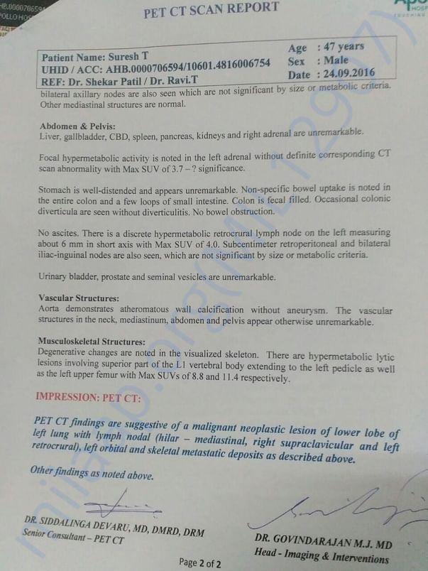 PET CT Scan Report