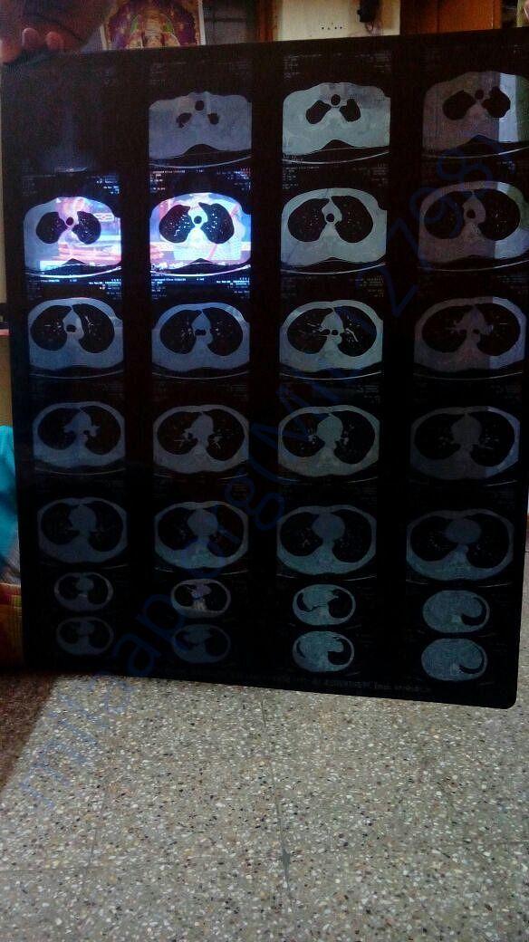1 MRI Scan Report