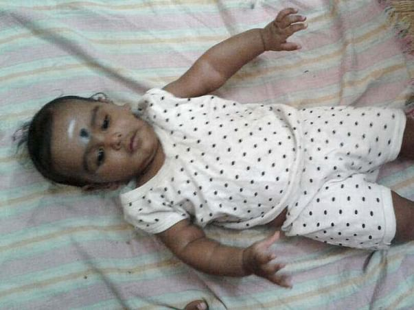 Help for Baby Sai 's medical treatment