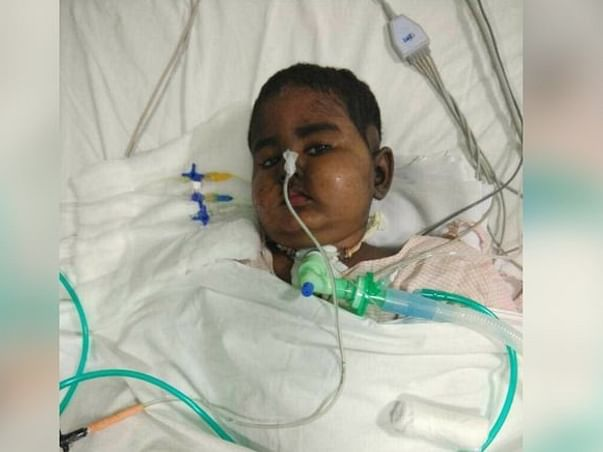 SAVE BABY KAYALVIZHI FROM CANCER  !